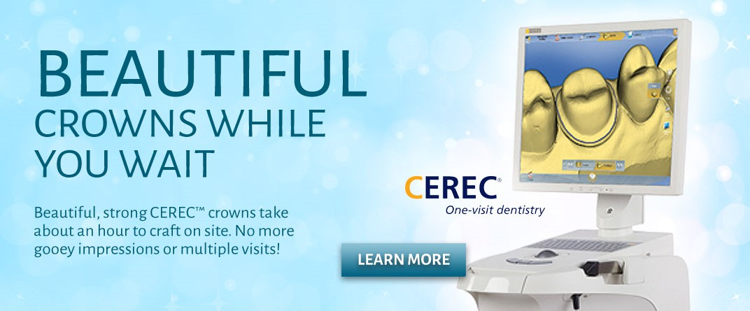 CEREC Dental Crowns Sioux City IA