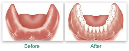 Dentures Before & After Photos