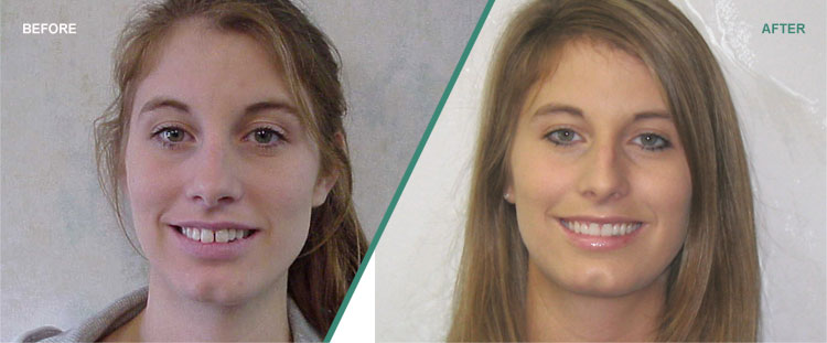 Invisalign: Before & After Photos Sioux City IA