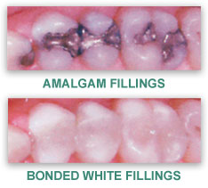 White Dental Fillings Sioux City IA